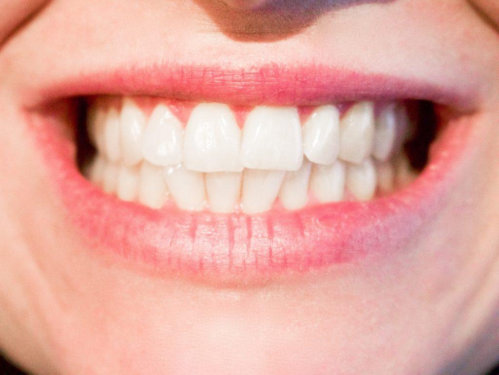 Finndent Dental Units